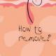 Как правильно произвести удаление вросших волос и как избежать врастания