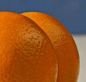 Как избавиться от целлюлита на ягодицах и бёдрах