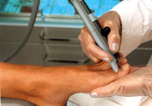 Лечение вросшего ногтя лазером