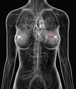 Стадии рака груди