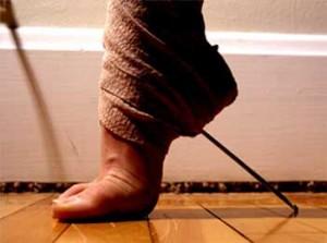 Болезни ног и их лечение