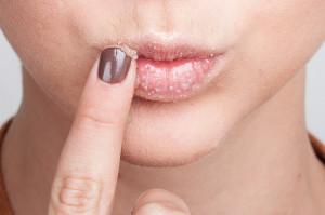 Маска из меда для губ