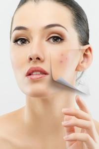 Как подобрать косметику для проблемной кож